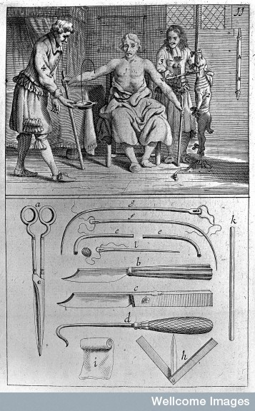 M0001645 Transfering blood of a dog into a patient, circa 1692.